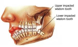 wisdom-teeth-01-en